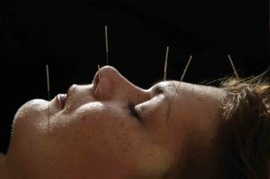 Accupuncture-Hands